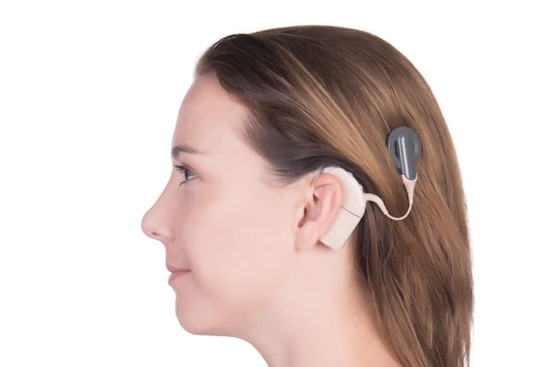 cochlear implant.